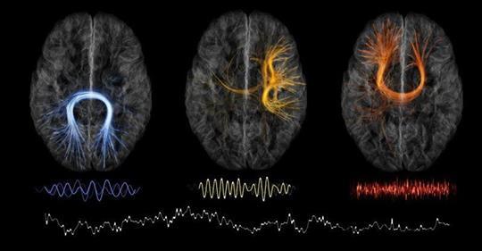 Come funziona il cervello